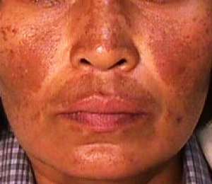 Melasma In Men